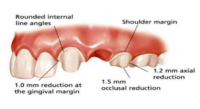 Posterior Bridge Preparation
