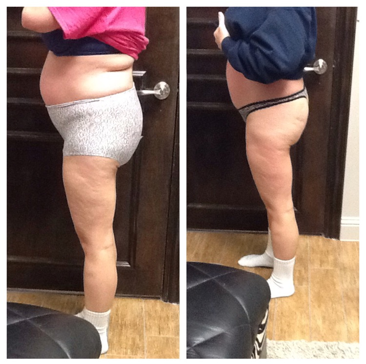 After 4 weeks, 2 days a week. (8 Lipo Body Shaping System Treatments and 8 Cellulite Massage System Treatments)