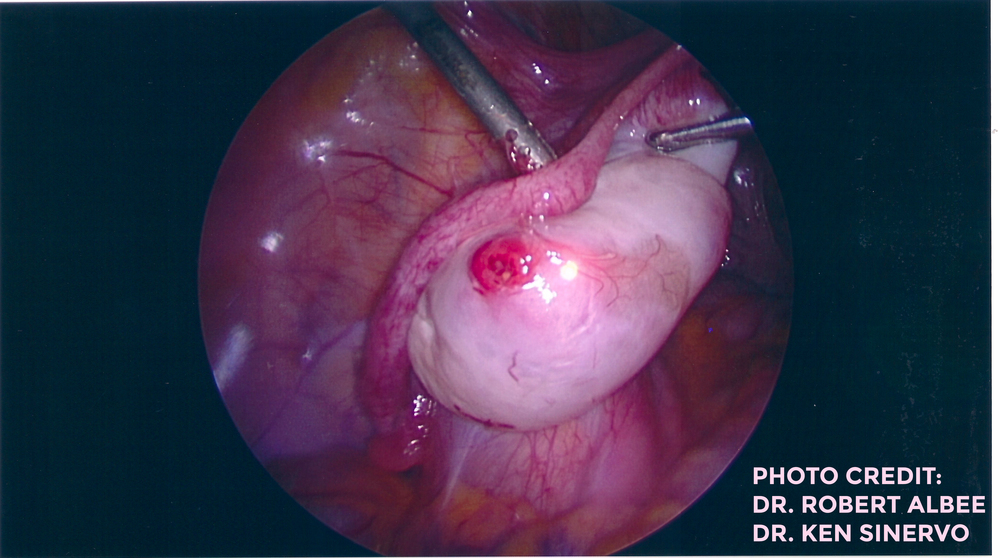 Recent Ovulation and Corpus Luteum Cyst