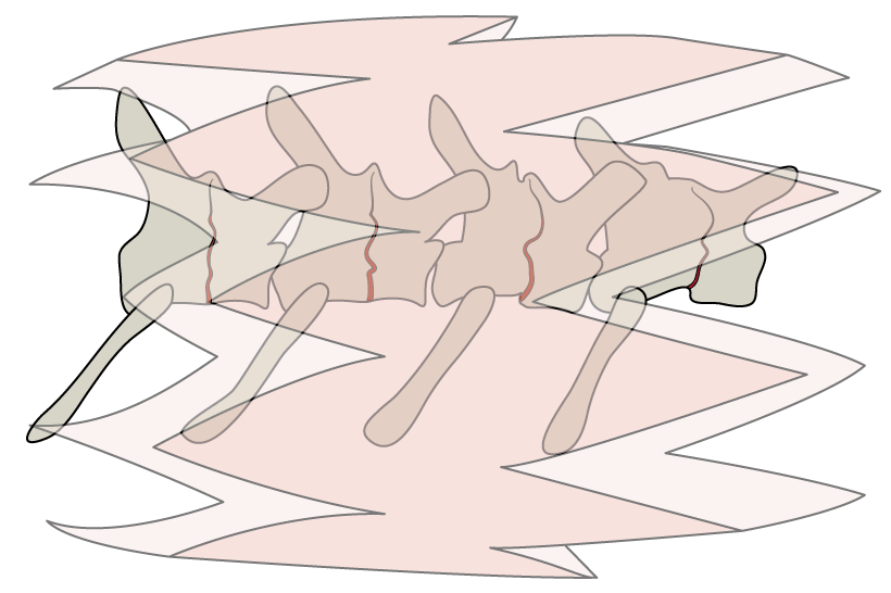 Higham_LateralVertebrae.png