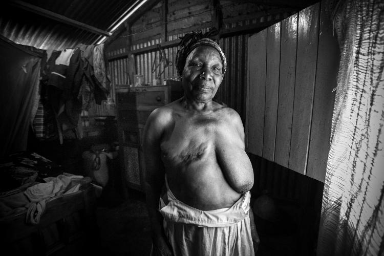 Cancer in Africa by Georgina Goodwin via UBUNTU Blog
