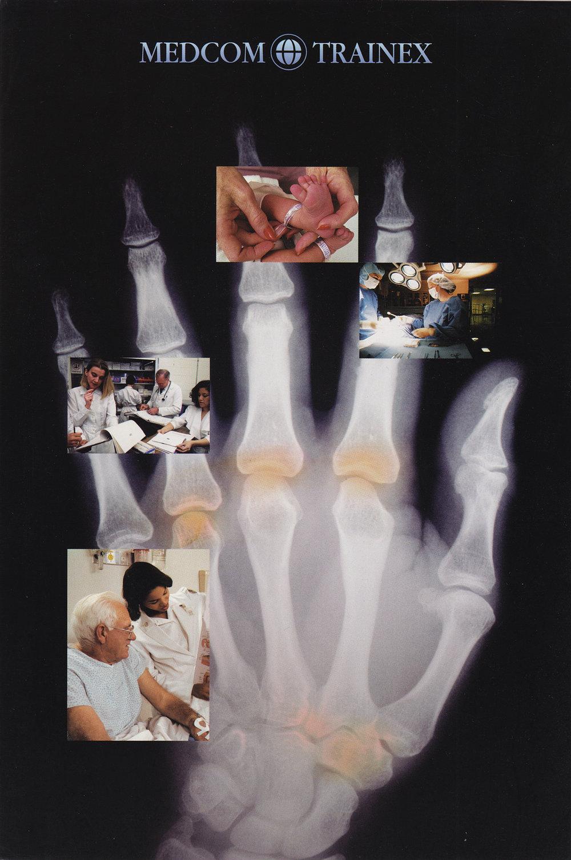 X-Ray_hand.jpg