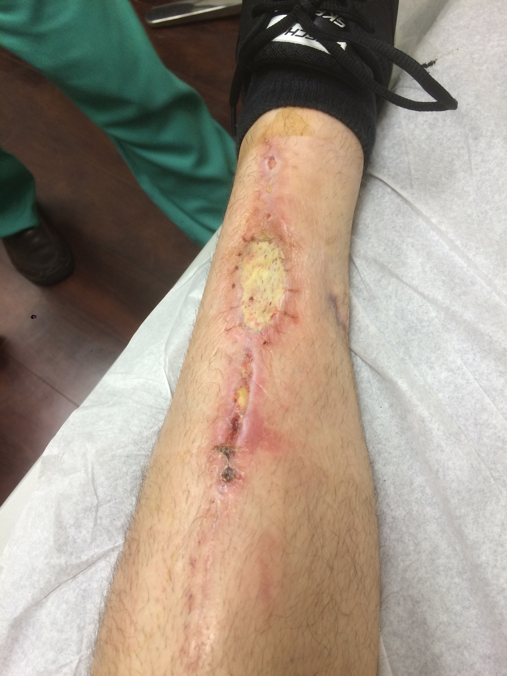 Incision site after skin graft.