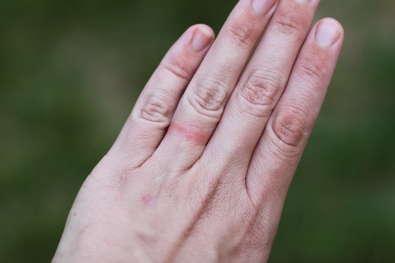 What is Ring Rash SafeRingz