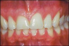 Zähne mit soliden und unsichtbaren Füllungen