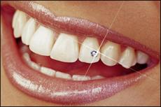 Zahnschmuck in einem der Frontzähne