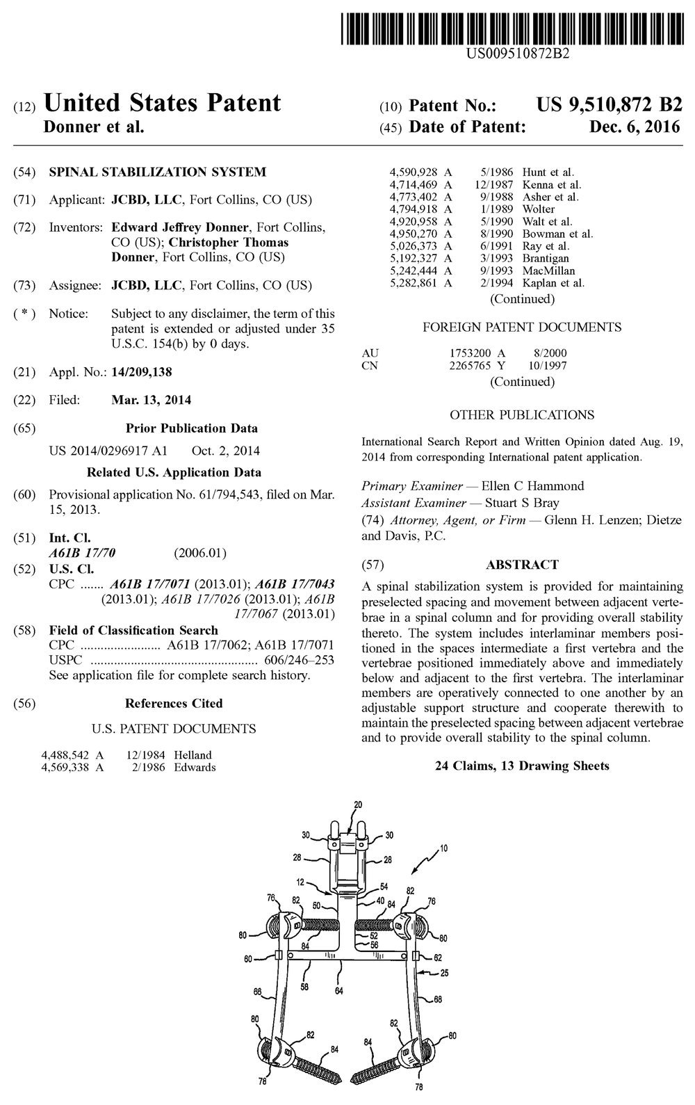 US9510872B2cover