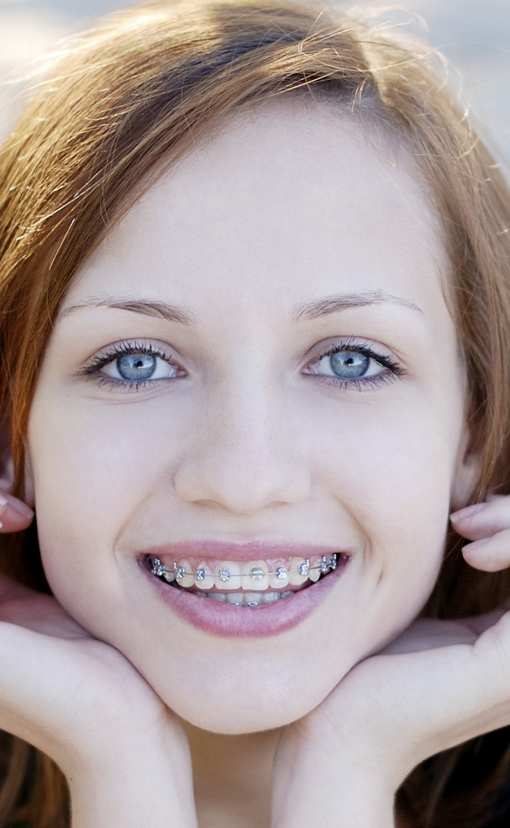 Orthodontic Treatment  For Children - Kawa Orthodontics - Braces Boca Raton - Orthodontics Kawa Orthodontics - Florida - Orthodontist Boca Raton - Invisalign boca raton