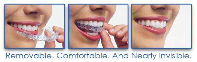 Image of How Invisalign Attaches to Teeth