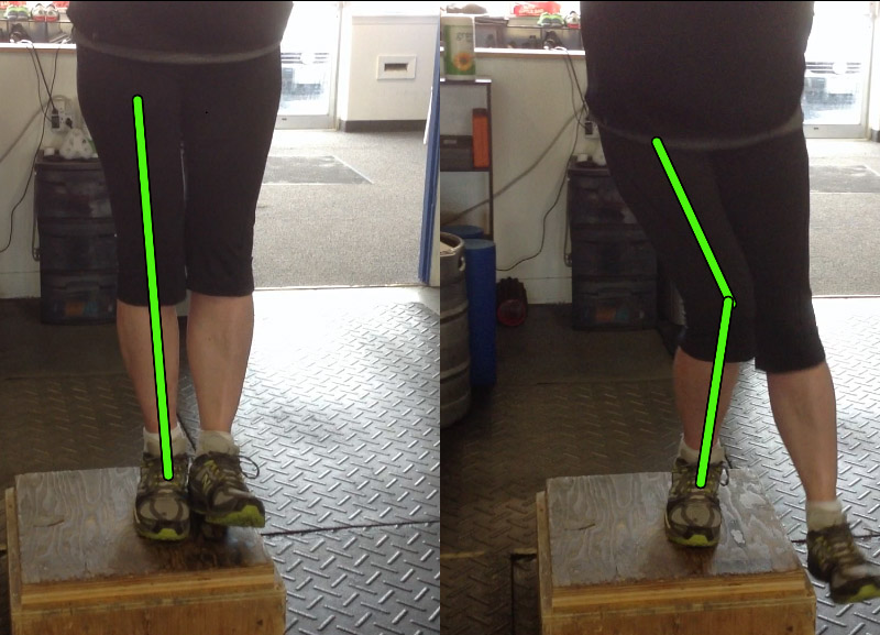 Step-up fail: the knee caves in as the client performs the movement.