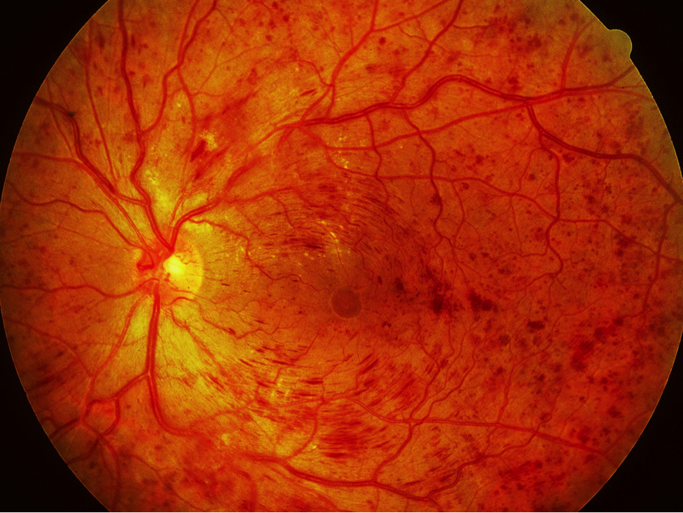 Central Retinal Vein Occlusion (CRVO)
