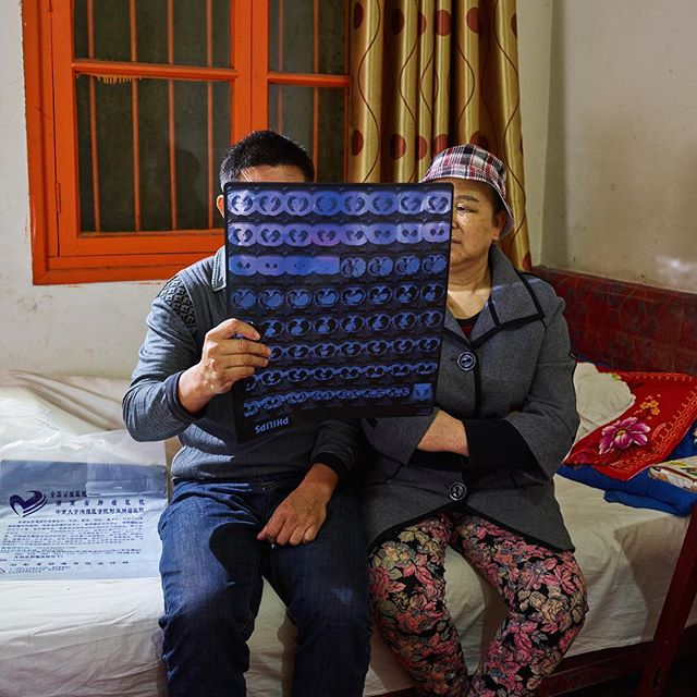 Couple living in a hostel close to the cancer hospital of Changsha. Many patients are getting into debt in order to pay for their treatment. Warning: the 5th episode on healthcare is a heavy one. Tomorrow night 20.15 on NPO2. #hartvanchina #china #documentary #photographer #healthcare