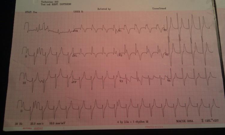 EKG 1 - Copy.jpg