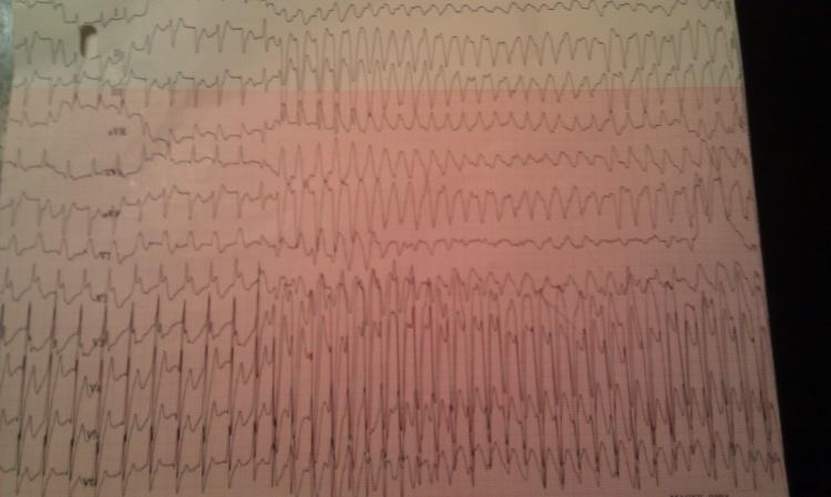 Cardioversion, bicard - Copy.jpg