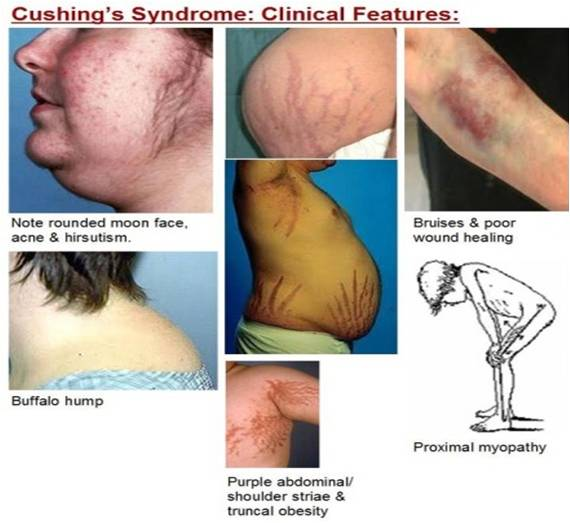 cushingoid features steroids