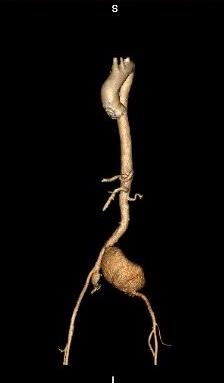 aneurysm2.jpg