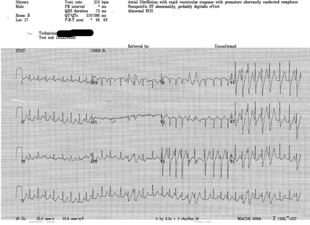 EKG1.png