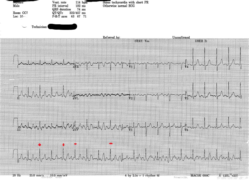 EKG2.png