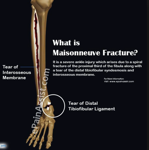 Maisoneuve fracture pattern has a medial maleolar fracture or tear of deltoid ligament with associated proximal fibular fracture and tear of the syndesmosis between the tibia and fibula.   On exam, palpate both the ankle and the proximal fibula to identify this fracture pattern.  Treatment is splinting followed by ORIF.