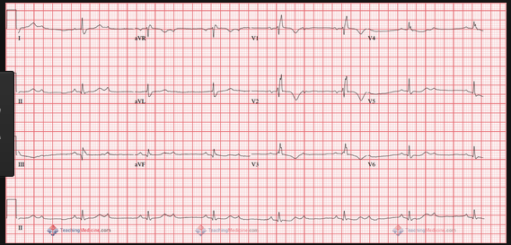 2nd Degree heart block.  2:1 block. Can't determine whether it is Mobitz I or II based on this ECG.