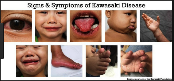 Patient had clinical findings consistent with Kawasaki's disease