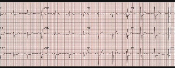 Diffuse ST depression with ST elevation in AVR is consistent with Left Main coronary Artery occlusion.