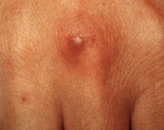 Pustule from disseminated ghonorrhea