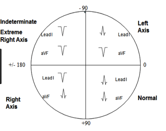 Quick way to determine axis based on QRS orientation in leads 1 and AVL.