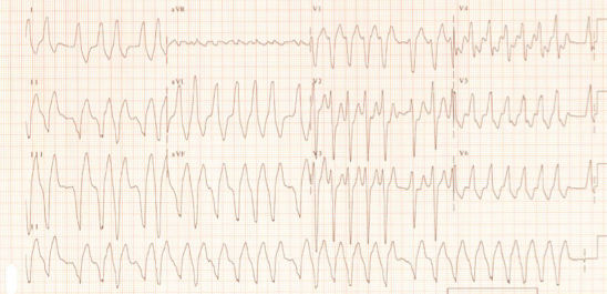 Elise comment: Know this EKG.  Irregular, wide and narrow, fast.  The answer for this EKGis always procainamide if stable, synchronized cardioversion if unstable.