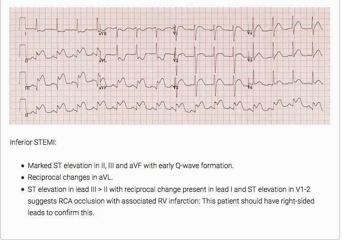 EKG suggestive of RCA occlusion. Editor note: A mnemonic I just made up is 3-2-1. ST elevation in 3>2 and ST depression in Lead 1.