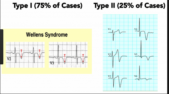 Wellen's syndrome is a sign of critical LAD stenosis. These patients are at high risk for Anterior MI and should not be given stress testing. They need a cath.