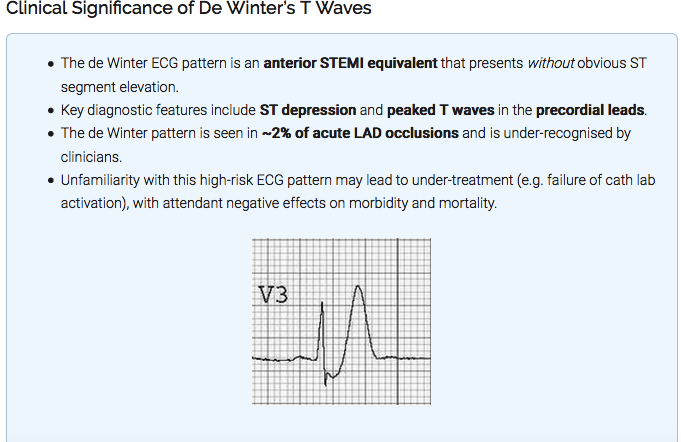 De Winter EKG changes are considered an Anterior STEMI equivalent