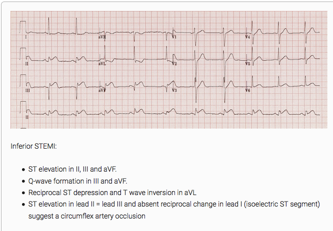 EKG suggestive of Circumflex Occlusion. Editor note: My next mnemonic is 2-3-none. ST elevation is 2 and 3 are equal with no ST depression in Lead 1. So, 3-2-1 and 2-3-none are mnemonics you can use to differentiate a RCA and Circumflex occlusion.