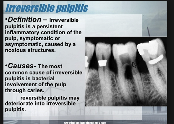 Pulpitis is the most common cause of tooth pain.  Treat with pain control and antibiotics.  If there is an open area on the crown, it may help to place a covering on the tooth with Temrex. Patientswill need dental referral for extraction or root canal.
