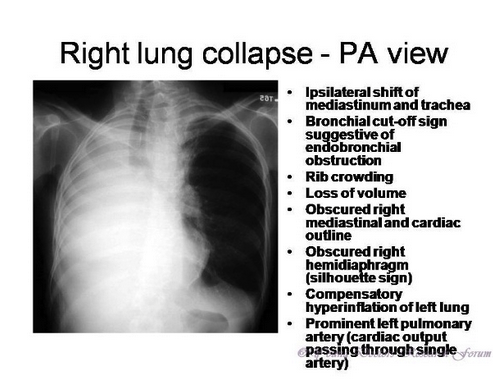 Lobar or lung collapse on CXR will demonstrate increased density on affected side and mediastinal shift to affected side. Treat with suctioning, nebs, chest PT and bronchoscopy.