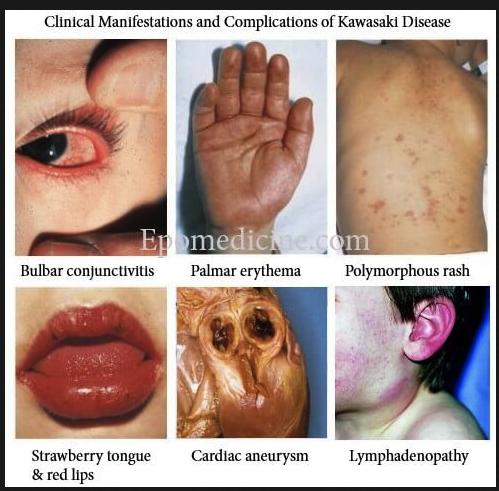 Images associated with Kawasaki's disease