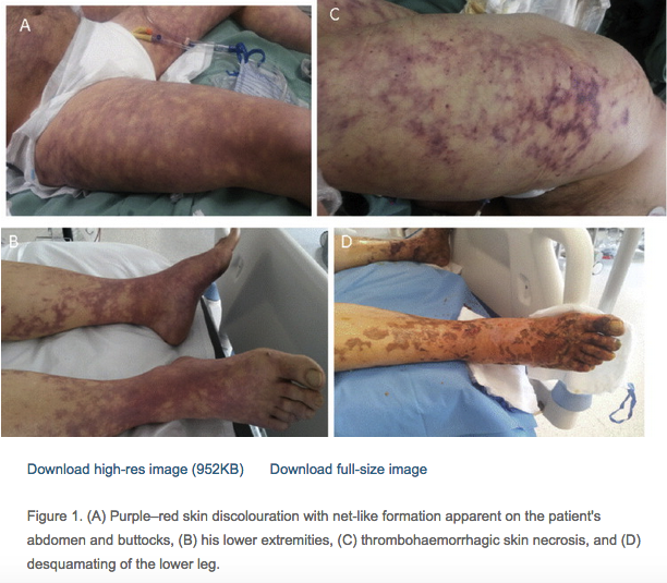 These pictures demonstrate livedo racemosa from capnocytophaga canimorsus. Editors note: Highest risk patients are those without a spleen, alcoholics, and other causes of immunocompromise. Immunocompetent patients however also have gotten this infection. Consider prophylaxis with Augmentin or Clindamycin for dog bites.