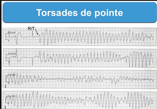 QT interval 500ms or greater on EKG increases risk of Torsades.  Treat torsades with defibrillation and IV magnesium 2g IV ( this dose can be repeated Q15min once or twice if still reverting to torsades) Once the patient is in sinus rhythm, you can use overdrive pacing or IV isoproterenol to increase the heart rate to 110-120 and narrow the QT interval.  Next, correct hypokalemia and hypomagnesemia. You can give lidocaine or phenytoin as antiarrhythmics if needed beyond the other above measures.