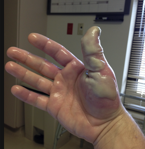 Treat Hydroflouric acid burns with copious irrigation followed by applying a calcium gluconate gel made by mixing an amp of calcium gluconate with surgilube. Put that gel in a surgical glove and put it on the patient's hand.  If the patient is still having pain, calcium gluconate can be injected into the subQ tissues with a 27g needle. Finally, if needed, calcium gluconate can be given intra-arterially. Consult with an Toxicologist and/or an Intensivist when considering intra-arterial calcium gluconate.