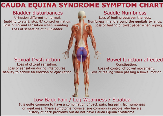 Clinical Picture of Cauda Equina Syndrome