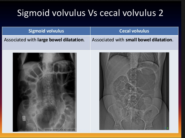 Nice pearl to help differentiate Cecal vs Sigmoid volvulus. Sigmoid volvulus will have large bowel dilatation.  Cecal volvulus will have small bowel dilitation.