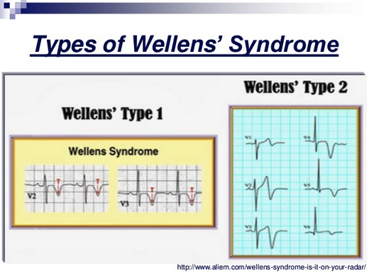 Wellen's syndrome is associated with critical LAD stenosis