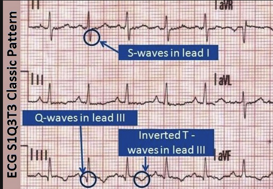 Pt's presenting EKG showed S1Q3T3 which is seen with pulmonary disease. Classically it is associated with PE but it is not specific for PE. It is a sign of right heart strain and can be seen with bronchospasm, pneumothorax, pulmonary HTN, and PE.