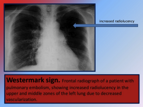 The patient also had a Westermark sign. If you are not thinking about this sign, it can be easily overlooked.