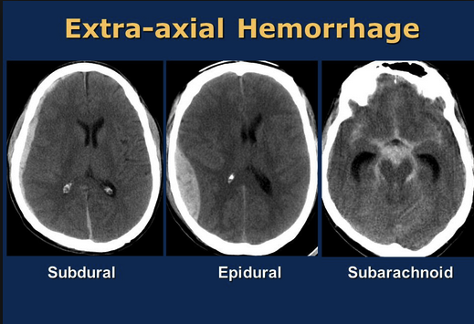 3 Common types of extra-axial brain bleeds. The Epidural hematoma has the convex side toward the mid-line as opposed to the subdural hematoma that follows the contour of the brain and is concave toward the midline. The reasons it is important are that Epidural hematomas usually need rapid surgery to decompress the brain, and if decompressed have a better prognosis than subdural hematomas.