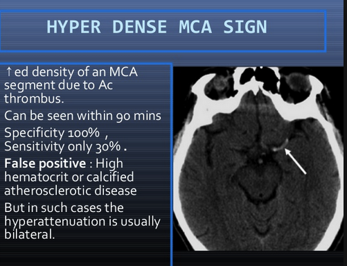 This is similar to the above mentioned hyperdense basilar artery sign.