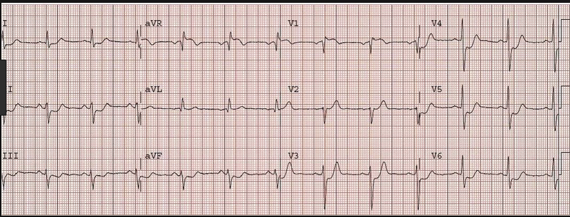 2013 AHA Guidelines note that this is a STEMI equivilent.  It can be due to left main, LAD, or triple vessel disease.  Diffuse subendocardial ischemia from causes such as cardiac arrest or hypotension from blood loss, or sepsis can also cause this pattern.