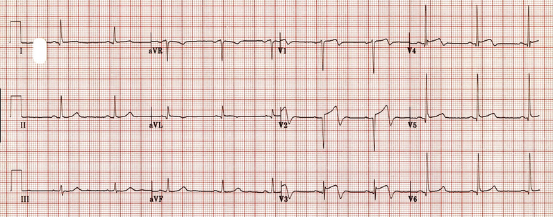 Wellen's syndrome is associated with proximal LAD occlusion.  Wellens' syndrome is a pattern of  deeply inverted or biphasic T waves in V2-3 , which is highly specific for a  critical stenosis of the left anterior descending artery  (LAD).  Patients may be pain free by the time the ECG is taken and have normally or minimally elevated cardiac enzymes; however, they are at extremely  high risk for extensive anterior wall MI  within the next few days to weeks.  Due to the critical LAD stenosis, these patients usually require invasive therapy, do poorly with medical management and may suffer MI or cardiac arrest if inappropriately stress tested.