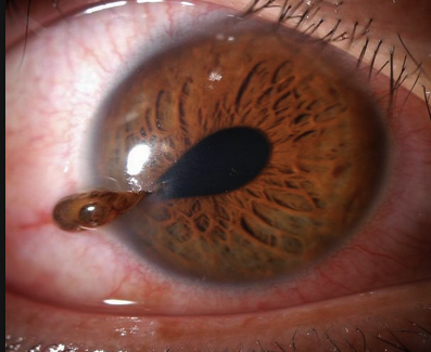 Ruptured globe with teardrop pupil