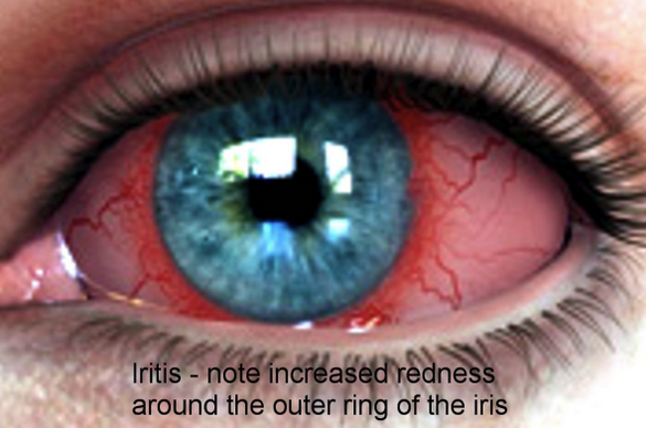 Iritis has redness most prominent around the limbus as opposed to conjunctivitis which has perilimbal sparing.  Iritis is associated with sarcoid, TB and inflammatory bowel disease as well as multiple other etiologies.